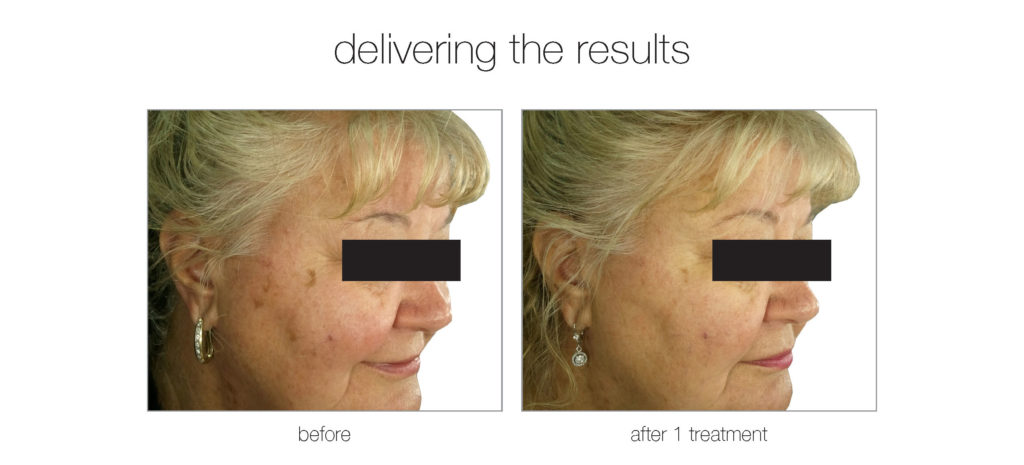 Before and After Venus Versa IPL Photofacial